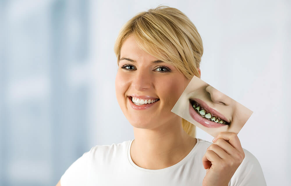 Best Way For Cheap Dental Treatment