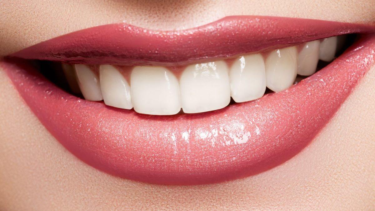 What is Dental Veneers