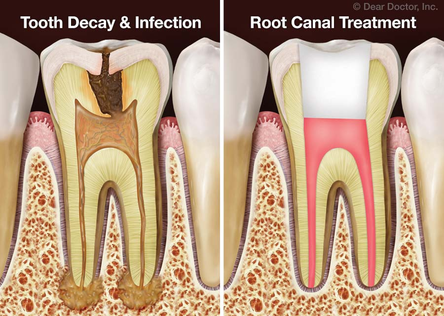 Benefits of Root Canalling