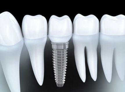 Questions about Dental Implants in Turkey
