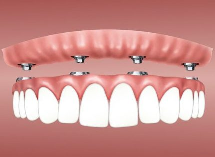WHAT IS ALL ON FOUR IMPLANT TREATMENT