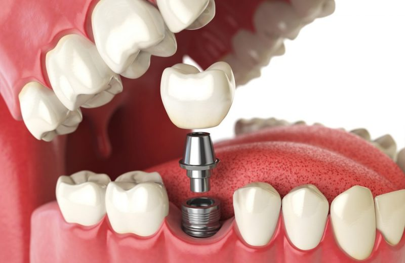 THINGS TO BE CONSIDERED AFTER DENTAL TREATMENT